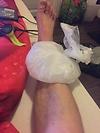 Verletzung beim Laufen